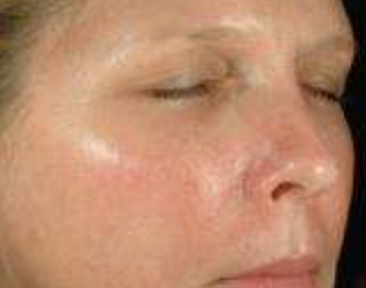 Skin Peel After
