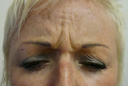 Before Botox Treatment