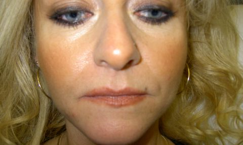 Dermal Filler After