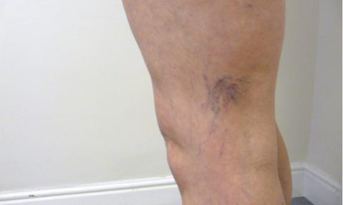 Microsclerotherapy