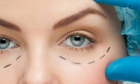Advanced Dermal Fillers