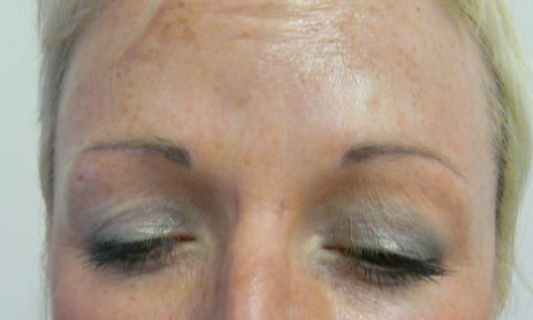 Botox 2 after