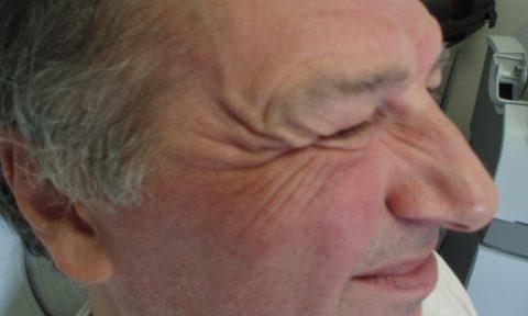 Botox 3 before