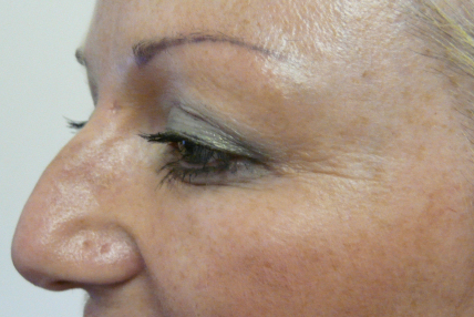 Botox 4 after
