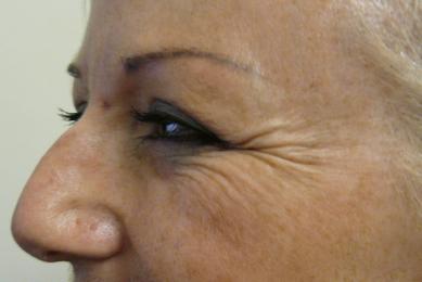Botox 4 before