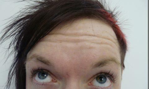 Botox 5 before