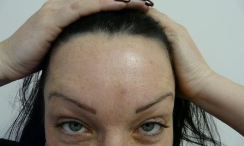 Botox 6 after