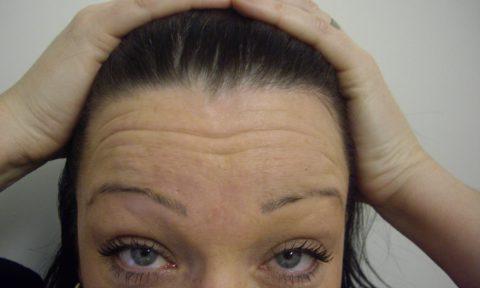 Botox 6 before