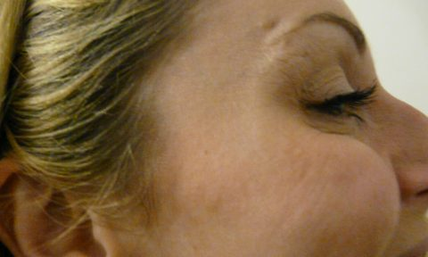 Botox 7 After