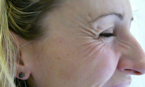 Botox 7 Before