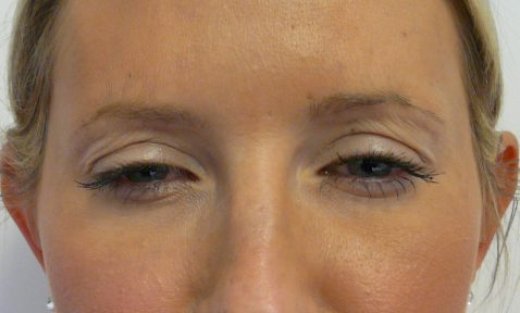 Botox 8 After