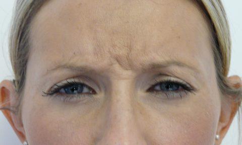 Botox 8 Before