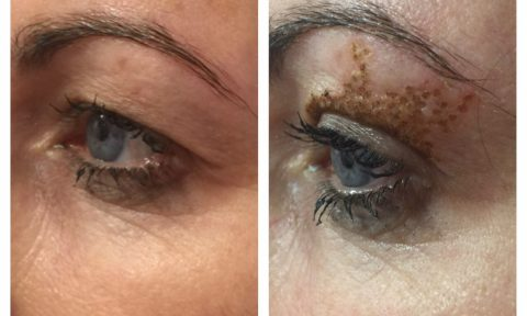 Non-Surgical Blepharoplasty - Cosmedic Clinic