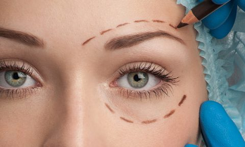 Non-Surgical Blepharoplasty