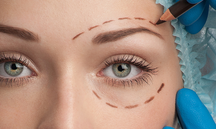 Non Surgical Blepharoplasty Cosmedic Clinic